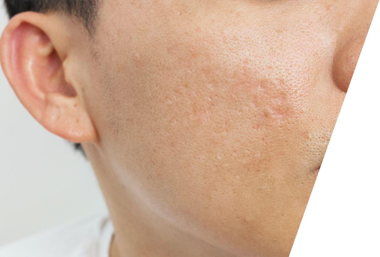 AM-med-derm-acne-scarring